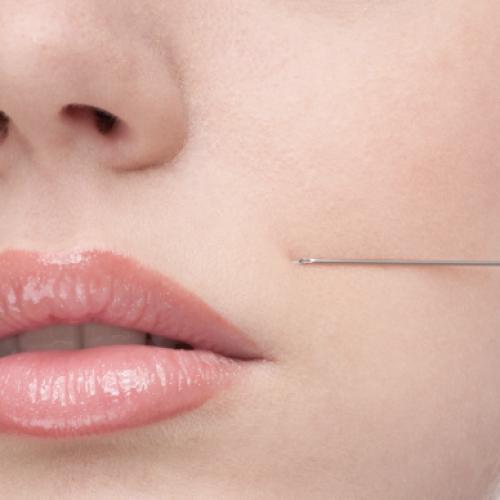 Medicina estetica. Botox o filler?