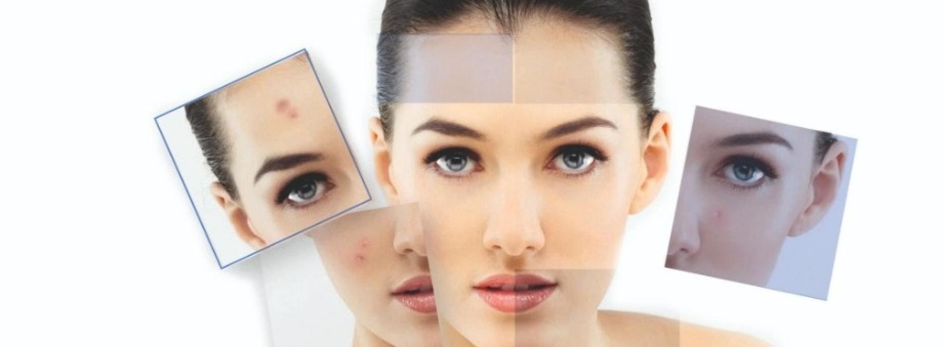 Dermatite Atopica. Gli esperti si confrontano al Novotel
