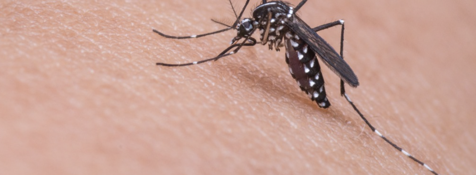 Giornata mondiale della zanzara. I consigli del dermatologo